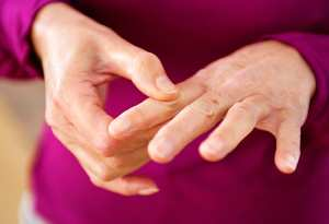 Artrite reumatoide: sintomi e cause di una malattia degenerativa