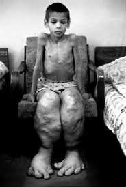 chernobyl bambini 1 - Chernobyl: che fine hanno fatto i bambini?