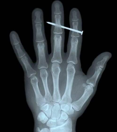 Radiografie imbarazzanti: le più bizzarre del web
