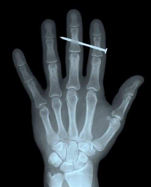 radiografie imbarazzanti 5 - Radiografie imbarazzanti: le più bizzarre del web