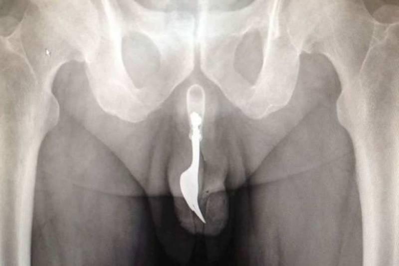 radiografie imbarazzanti 800x533 - Radiografie imbarazzanti: le più bizzarre del web