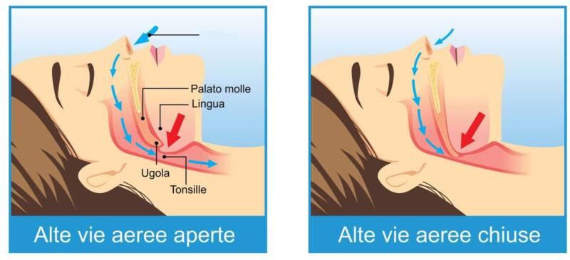smettere di russare russamento 800x365 - Smettere di russare, cause e rimedi semplici e naturali