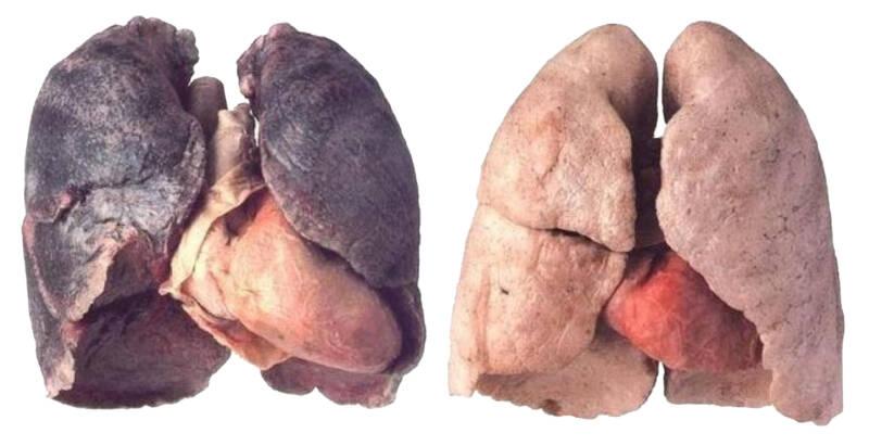 polmoni danneggiati dal fumo 800x411 - Asma da fumo: smettere è meglio che curare