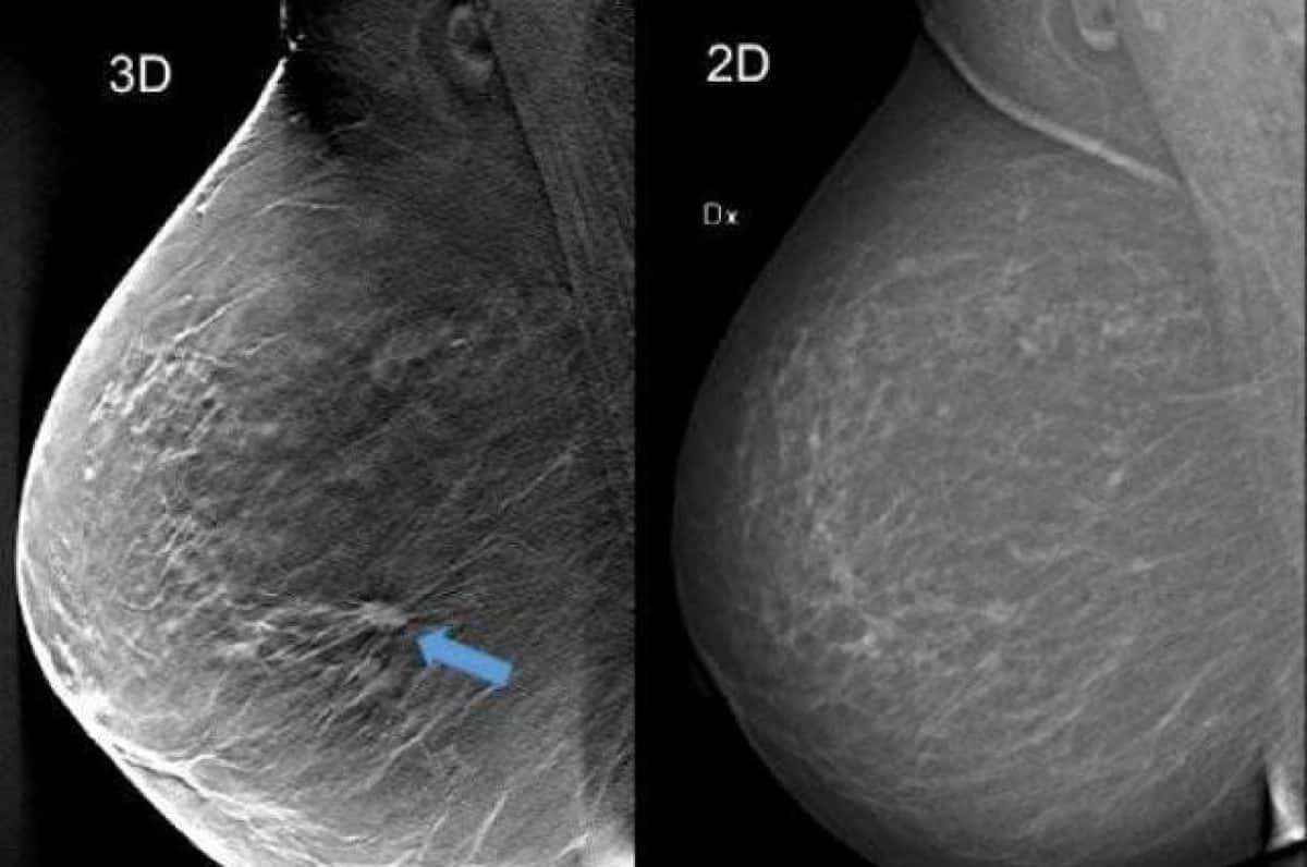 mammografia 3d - Tumore al seno, sintomi iniziali e gli strumenti per la diagnosi