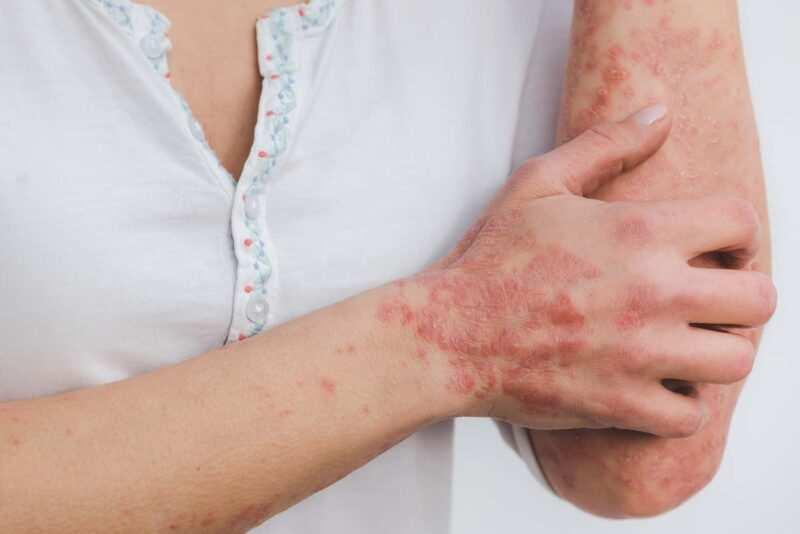 Psoriasi cura 800x534 - Psoriasi: cause, sintomi e trattamento con prodotti naturali