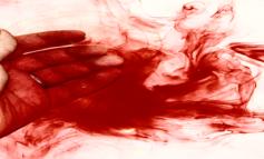 Sangue dagli occhi: la malattia misteriosa di Marnie-Rae Harvey