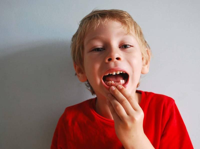 bambino senza denti carie 800x597 - Curare una Carie ai bambini quanto Costa? Consigli per non fare spese inutili